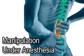 MUA, Manipulation Under Anesthesia, Pleasanton Chiropractors
